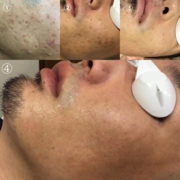 ルミクス脱毛による肌荒れ改善効果