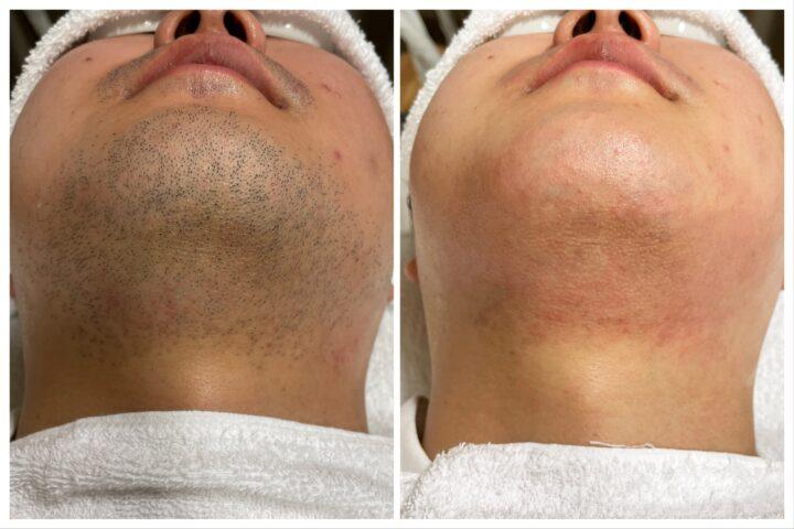 6万円でヒゲをなくせる?髭剃りにかかる生涯平均費用とは。立川メンズ脱毛サロンリアンジュより。の画像