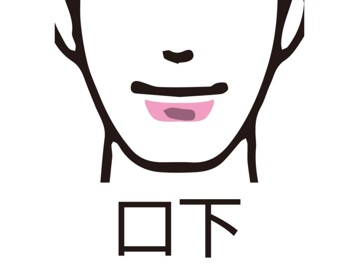 口下のヒゲ脱毛